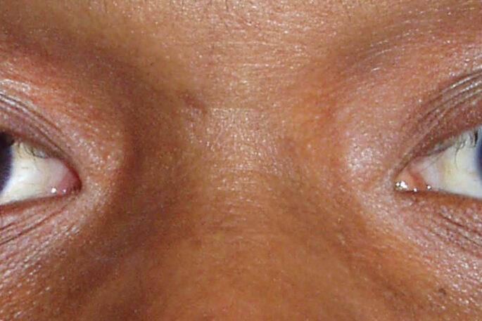cataract motibindu